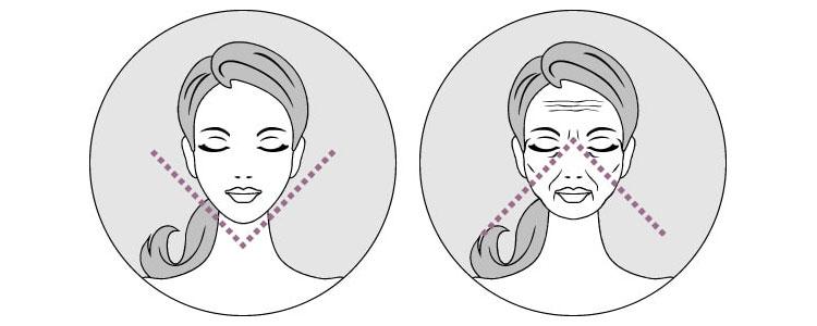 Sagging-Effekt beim Gesicht