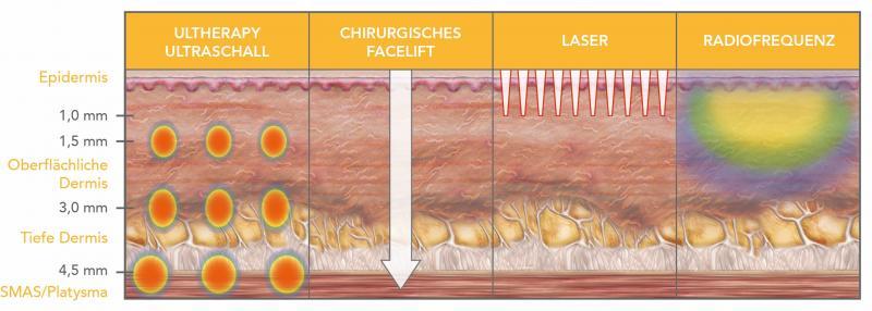 Ultheraphy entfaltet seine Wirkung durch Ultraschall | Plastische Chirurgie Düsseldorf