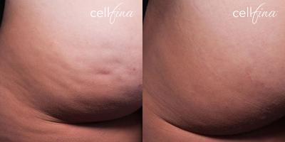 Behandlungsergebnisse nach einer Cellfina Behandlung nach der ersten Behandlung